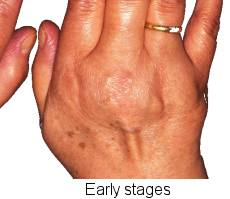 arthritis in the hand and fingers