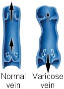 varicose veins picture